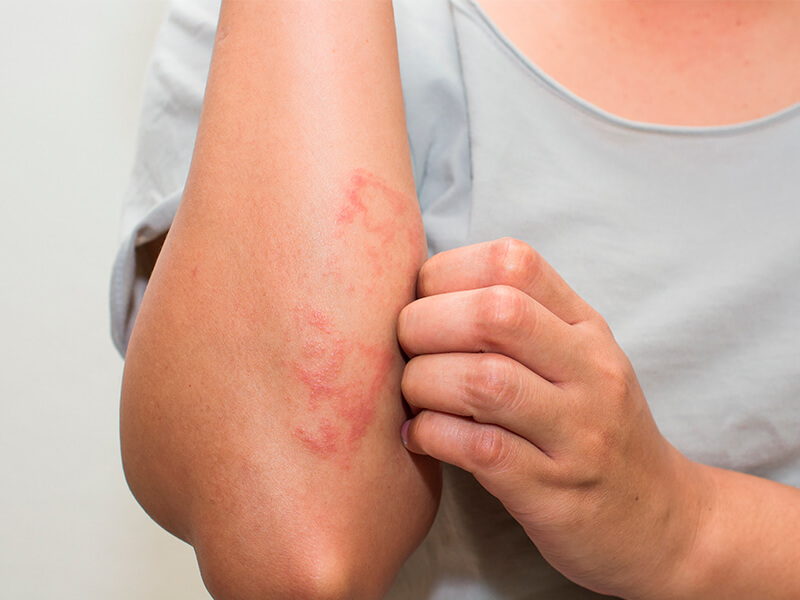 dermatite alergica de contato