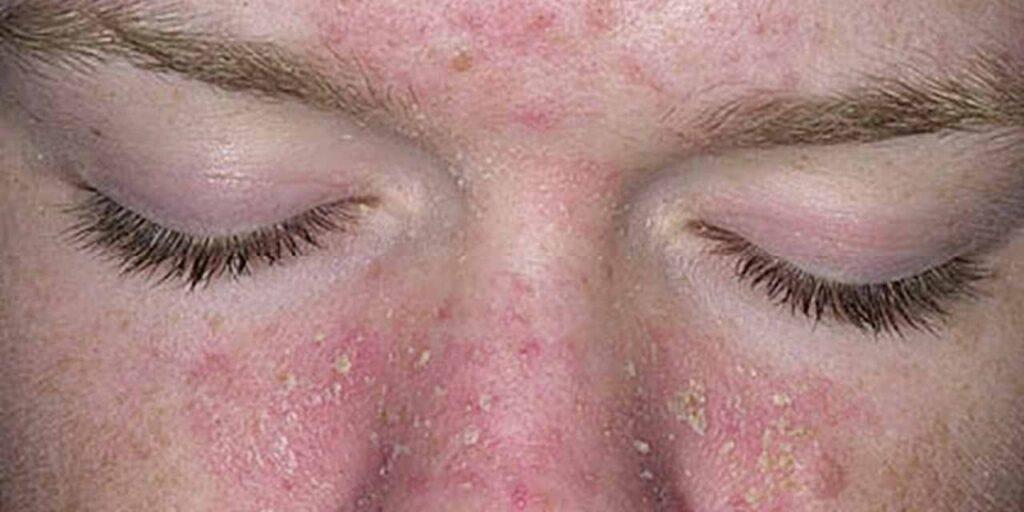 dermatite seborreica causas