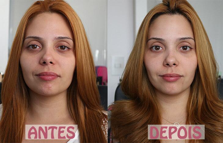 acido hialuronico serum facial antes e depois