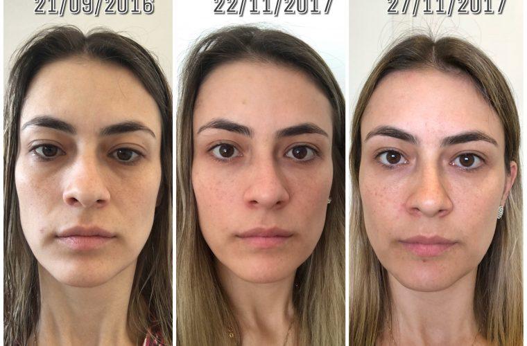 acido hialuronico: efeito após preenchimento nas olheiras