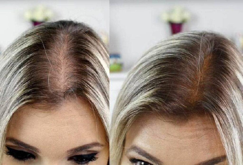 minoxidil antes e depois no cabelo