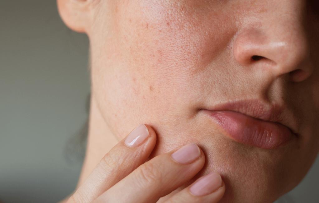 produtos para pele oleosa para a rotina skin care