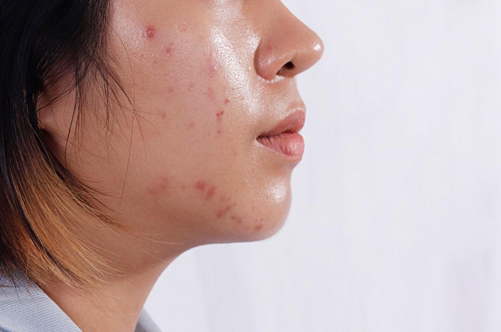 produtos para pele oleosa indispensáveis na rotina skin care